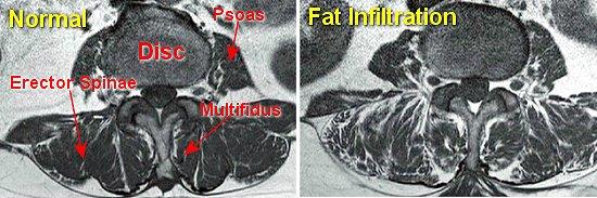fatty-infiltration